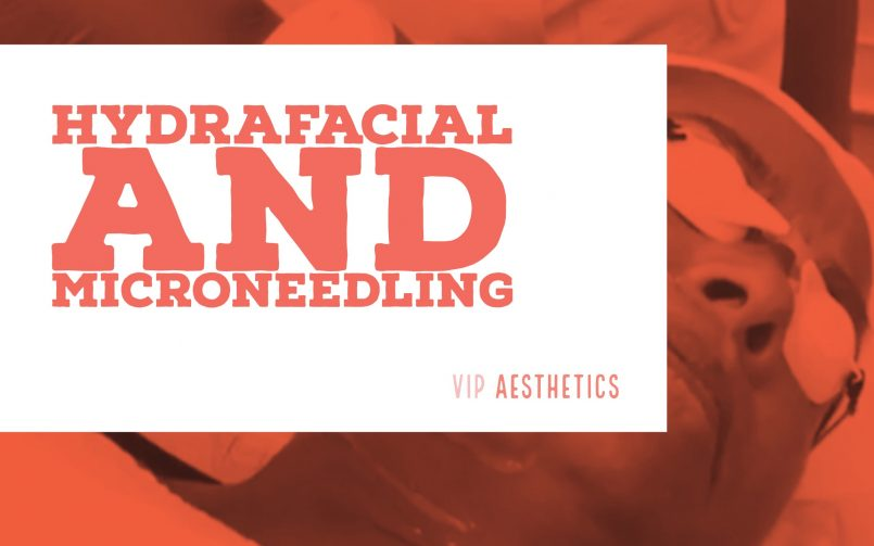 Hydrafacial and Microneedling in one session