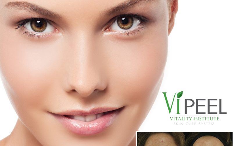 Vi Peel, a great choice for your skin