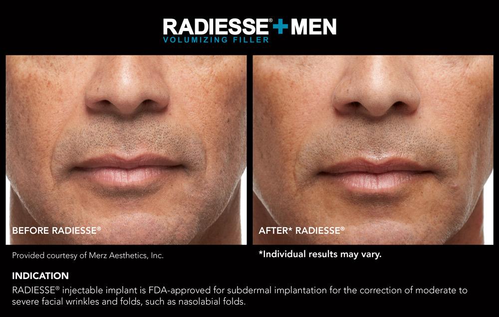 Radiesse+Men | VIP Aesthetics - Fort Lauderdale, FL